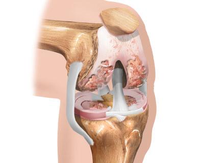 Гонартроз (артроз коленного сустава)