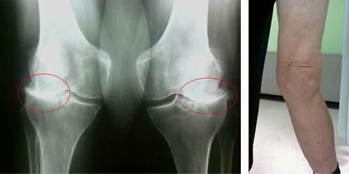 Третья стадия артроза коленного сустава