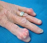 Болезни суставов рук - подагра