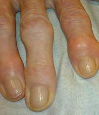 Болезни суставов рук - остеоартроз