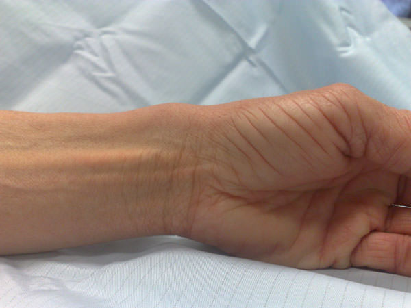 Остеоартроз тазобедренного сустава 3 степени лечение народными средствами