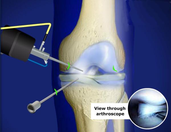 Артроскопическая операция на коленном суставе