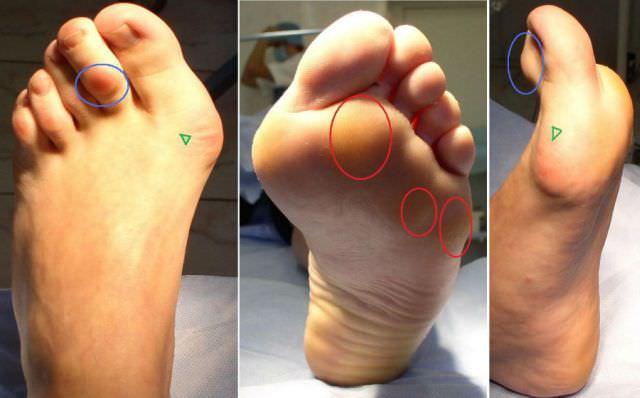Деформации стопы при артрозе