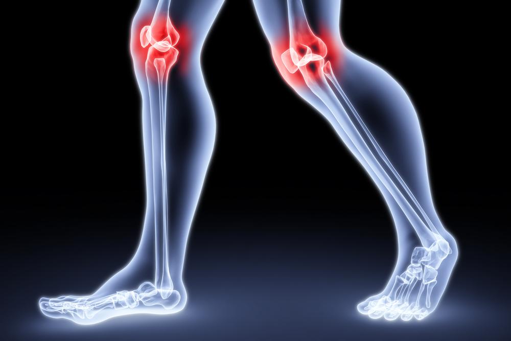 Вторичная профилактика остеопороза