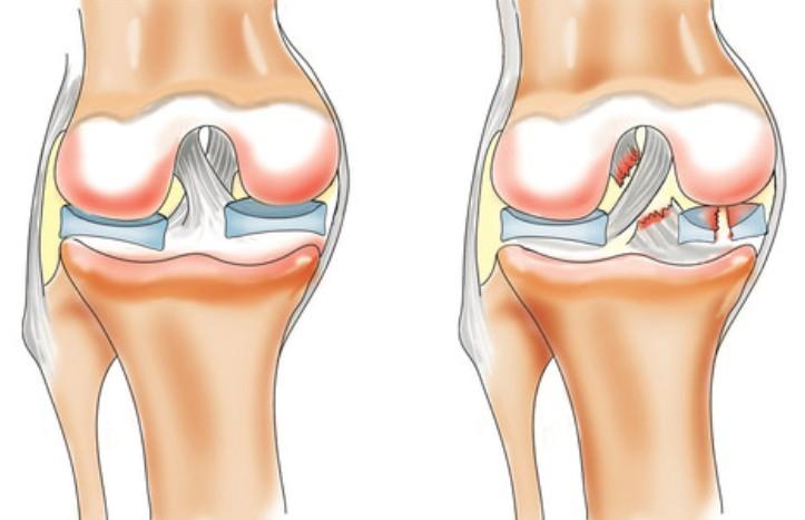 месные обезбаливающие при повреждении суставов