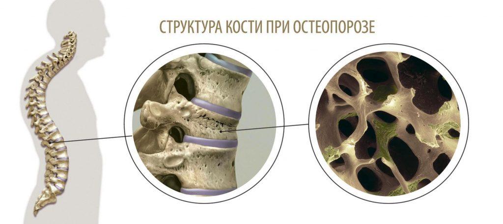 Классификация остеопороз