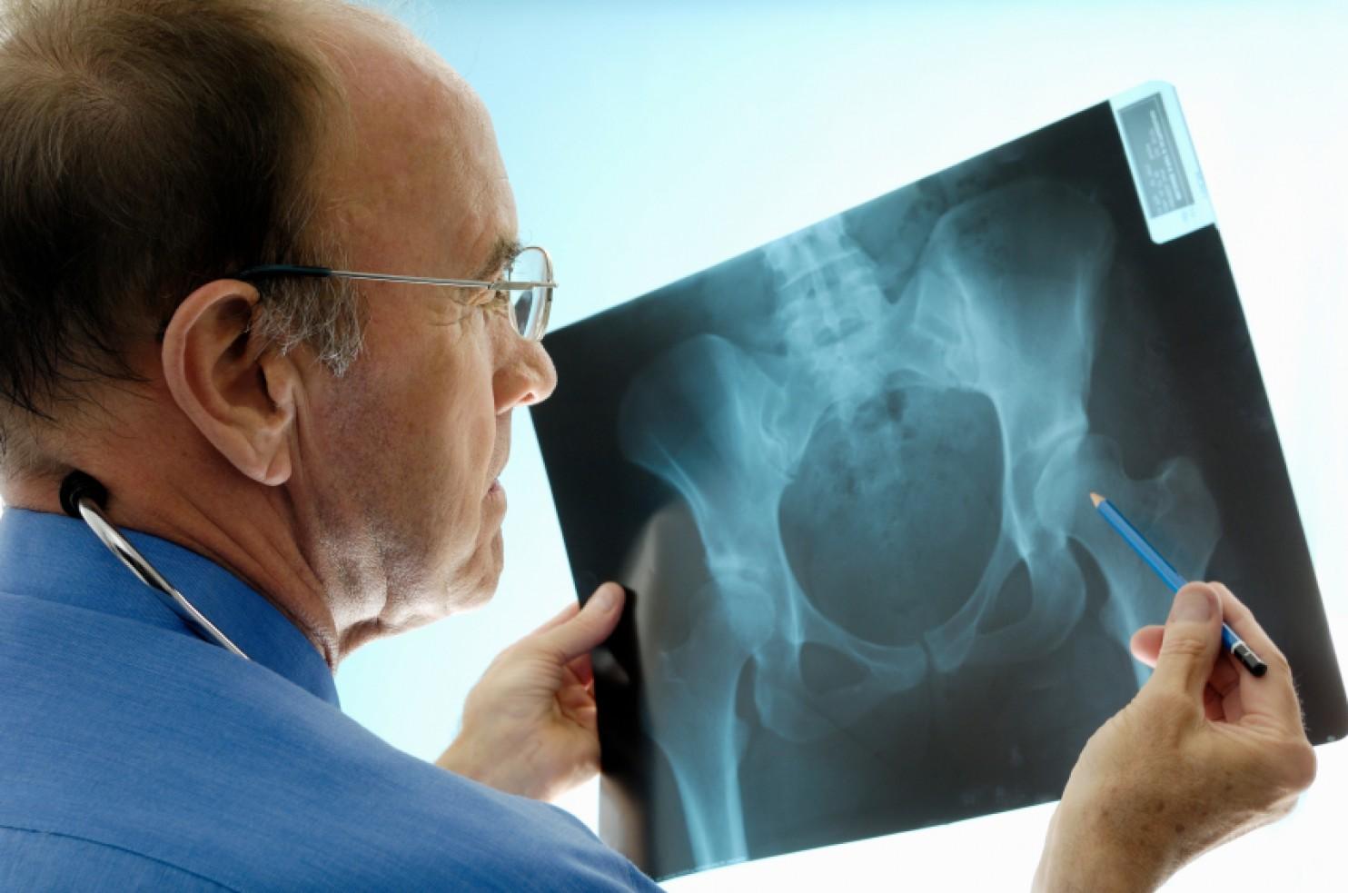 Фото детей с остеопорозом