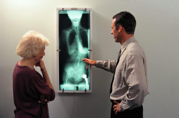Диагностика анкилозирующего спондилоартрита