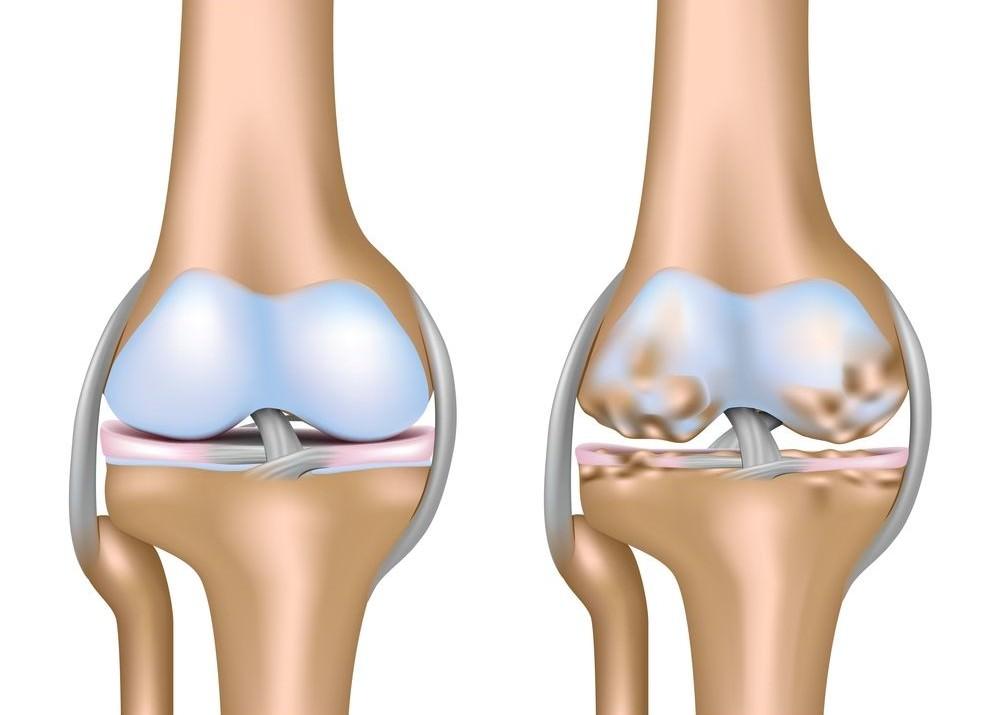 Дистрофия коленного сустава