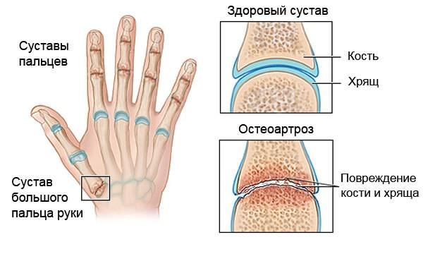 Проявления остеоартроза