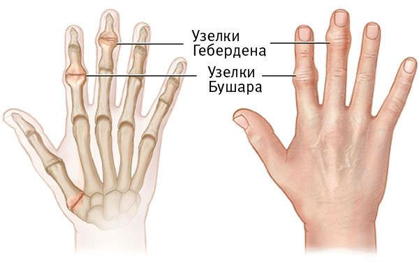 Третья степень остеоартроза пальцев