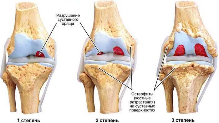артроз коленного сустава лечение картинки