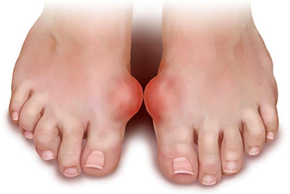Артроз пальцев ног