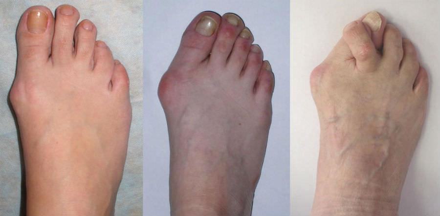 Степени артроза пальцев стопы