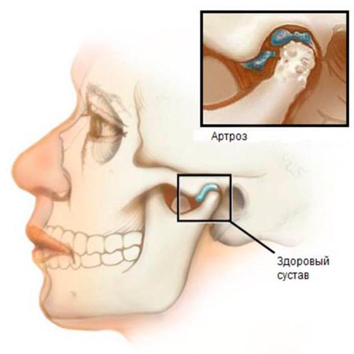 Артроз височно-нижнечелюстного сустава как лечить