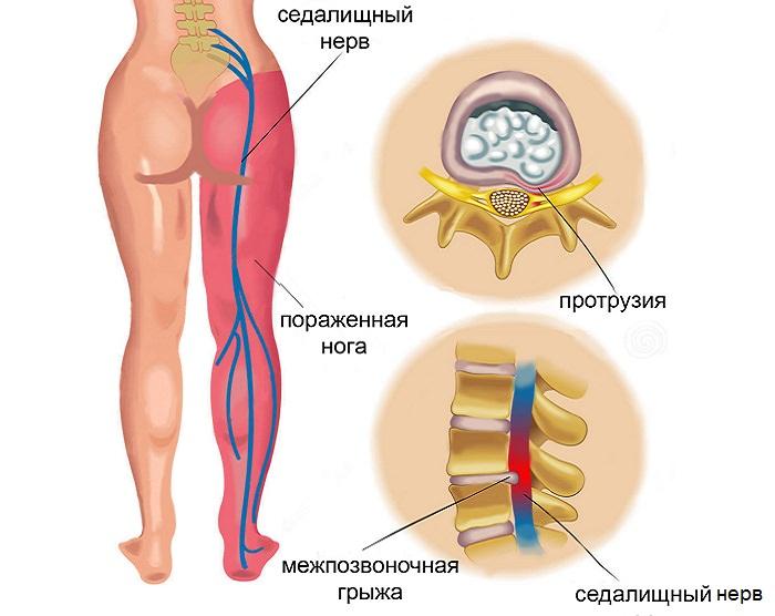 Туннельная невропатия