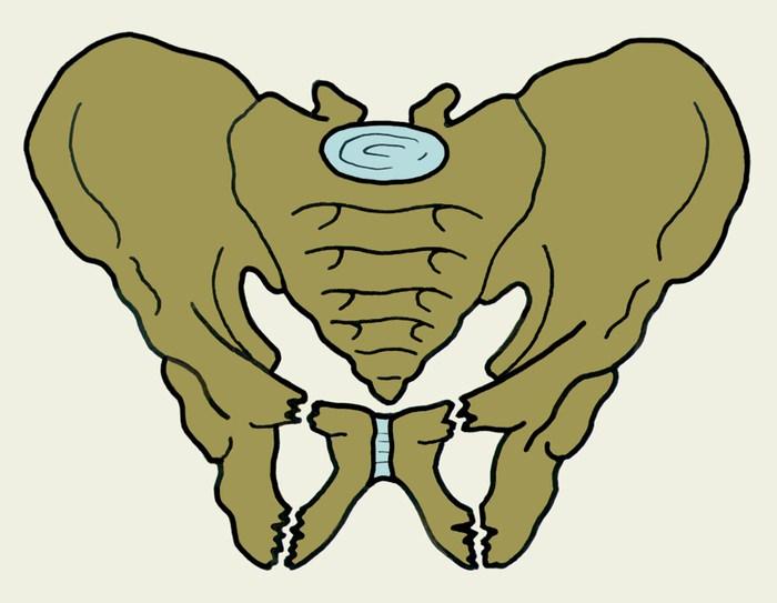 Перелом таза типа Мальгеня