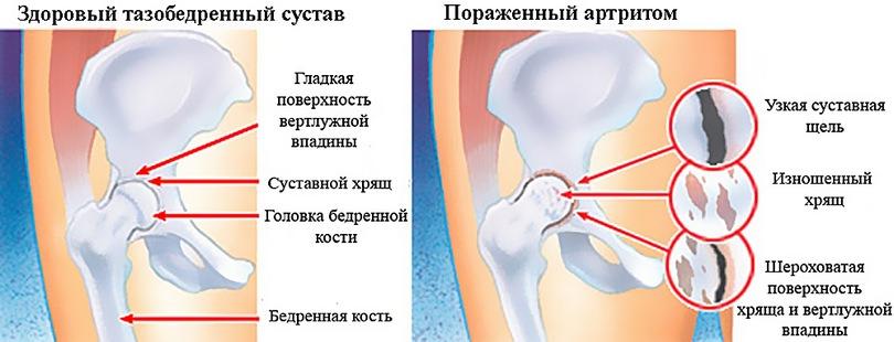 Фото артрита тазовой кости