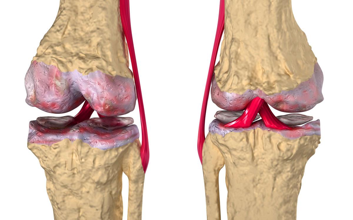 Коленные кости