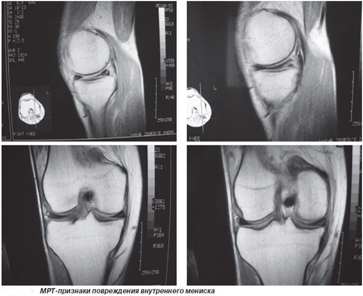 средство от боли в коленном суставе