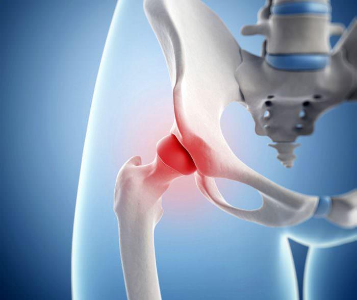 Бурсит тазобедренного сустава лечение народные средства артроз тазобедренного сустава 3 степени операция
