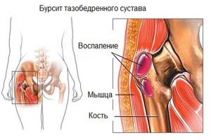 боль в тазобедренном суставе при артрите