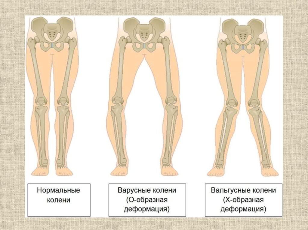Дисплазия коленного сустава у ребенка фото