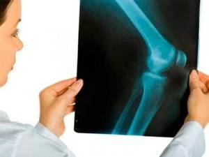 Диагностика гонартроза коленного сустава