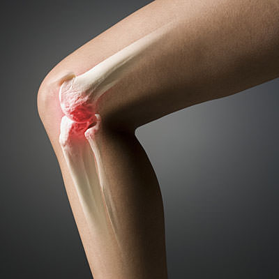 Артроз коленного сустава симптомы и лечение профилактика гонартроза