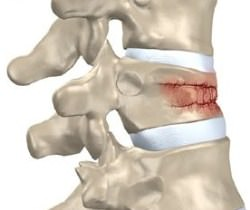 Компрессионный перелом позвоночника: симптомы, лечение, последствия