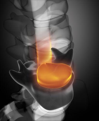 Грыжа диска на рентгеновском снимке