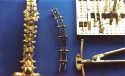 Хирургическое лечение сколиоза грудного отдела позвоночника