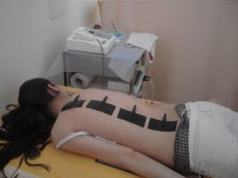 Лечение  спондилоартроза в пояснично-крестцовом отделе позвоночника