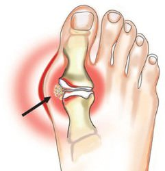 Подагрический артрит: симптомы, лечение, фото