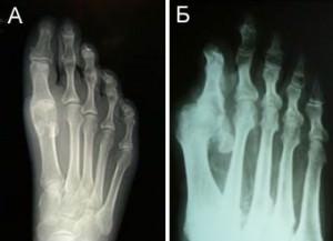 Лечение артрита пальцев ног