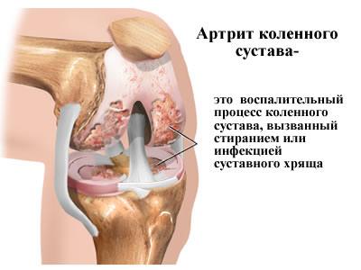 инфекционный артрит коленного сустава
