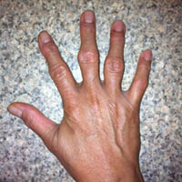 Болезни суставов рук - артрит