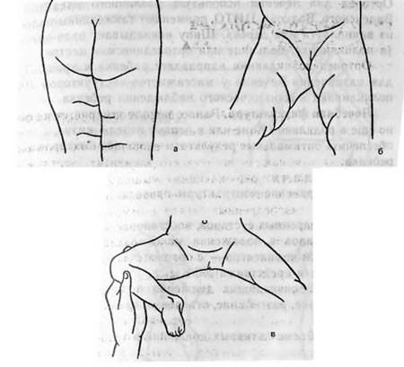 Ассиметричное расположение кожных складок
