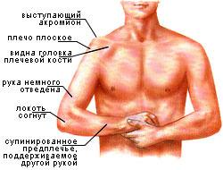 Симптомы вывиха плеча