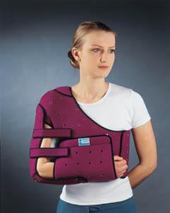 После перелома плечевого сустава