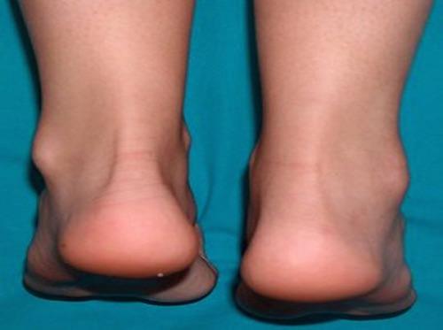 артрит голеностопного сустава