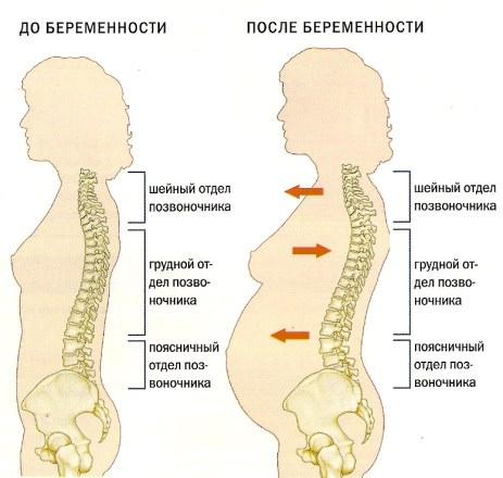 Во время беременности болит спина что делать