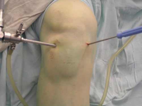 операции коленного сустава