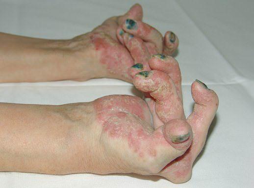 revmatoidnyj artrit 3