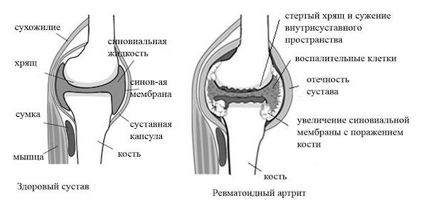 Боль в суставах ревматоидный фактор голеностопный сустав движения