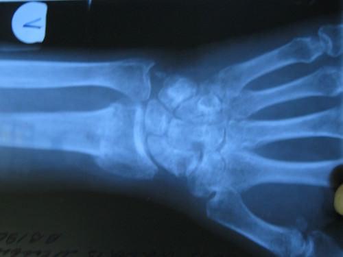 Перелом лучевой кости со смещением
