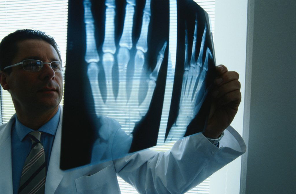 Ревматоидный артроз: симптомы, диагностика и лечение