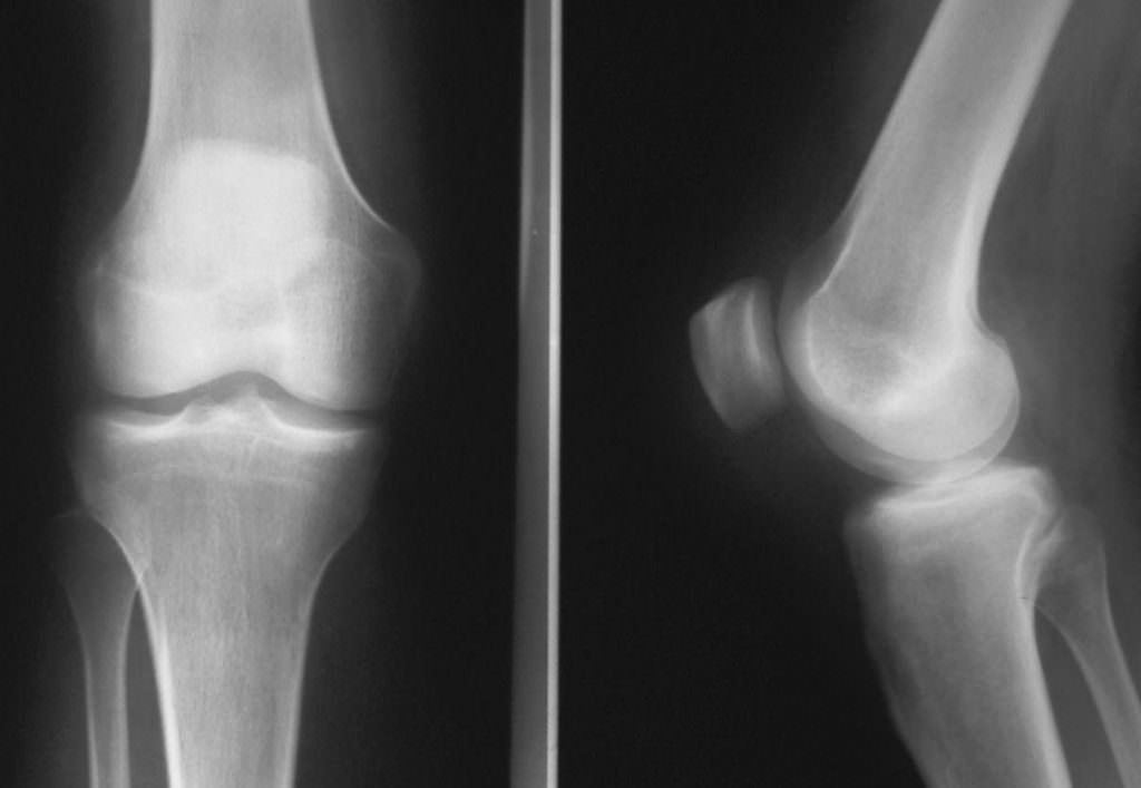 Бурсит коленного сустава на рентгеновском снимке