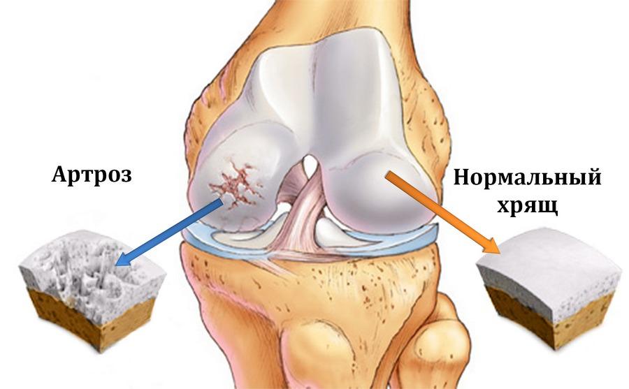 Деформация хряща при остеоартрозе