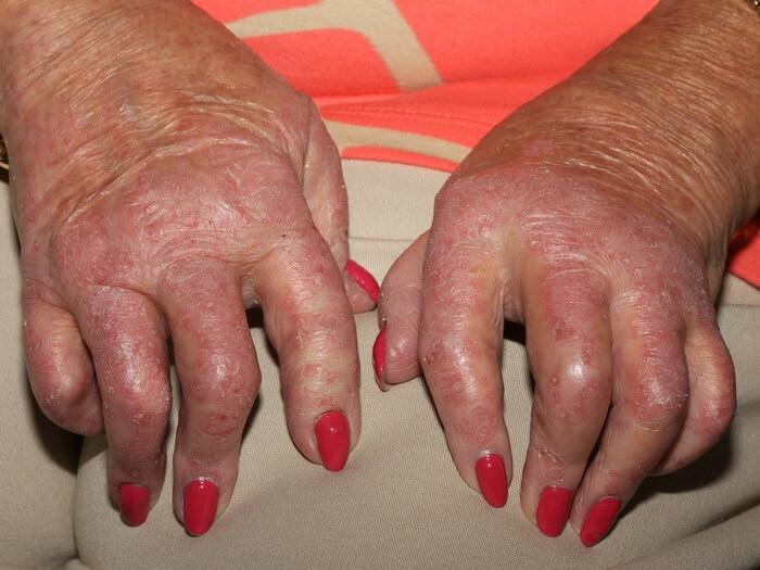Как распознать псориатический артрит
